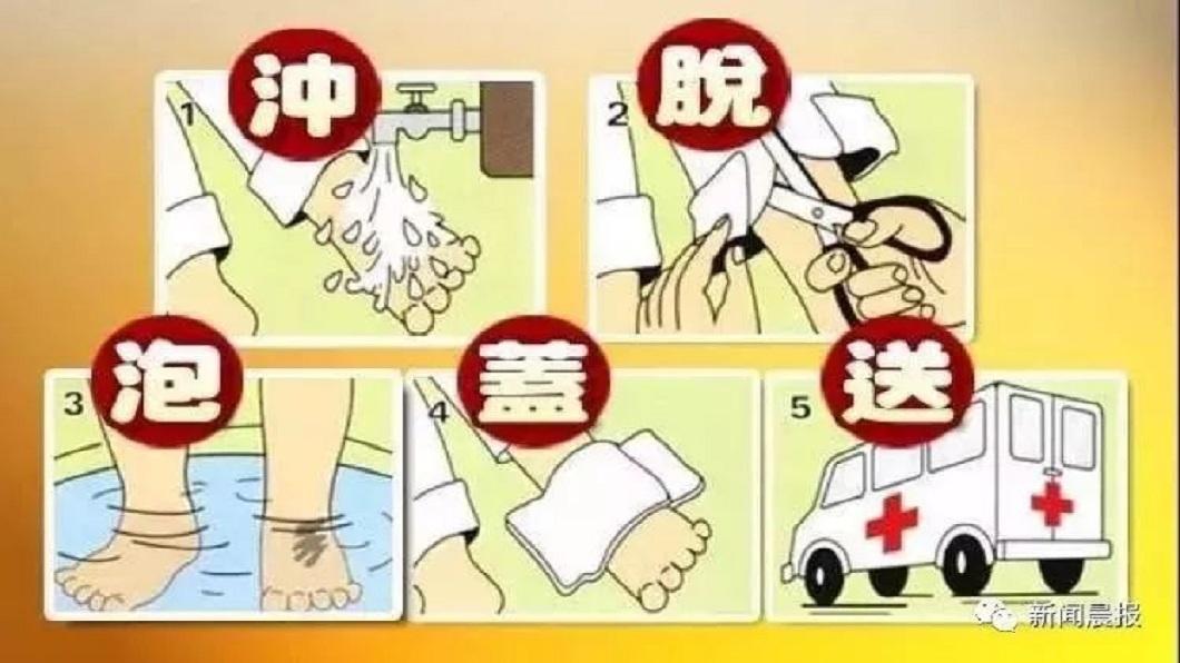 醫師提醒,燙傷發生時,一定要謹記沖脫泡蓋送的5字訣。(圖/翻攝自陸網)