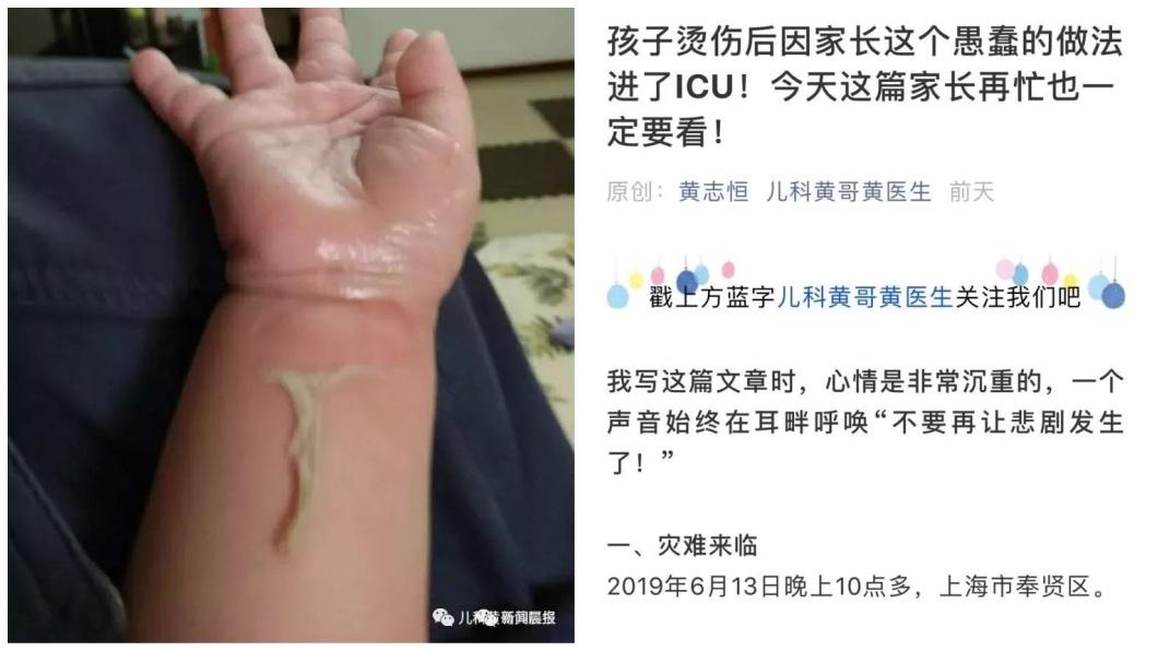 上海一名4歲男童日前不慎被燙傷,父親卻誤信偏方,在孩子傷口上淋上白酒,導致他傷勢加劇。(圖/翻攝自陸網) 天兵父信偏方 4歲兒被燙傷淋白酒害中毒送加護病房