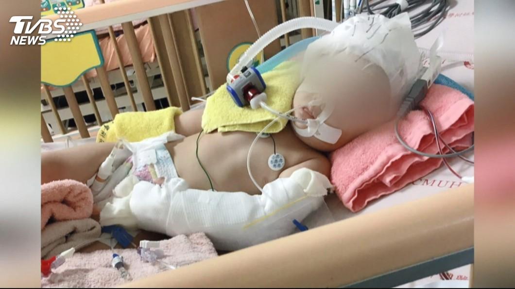 圖/TVBS 台中疑虐童案 保母涉重傷害罪檢方聲押獲准