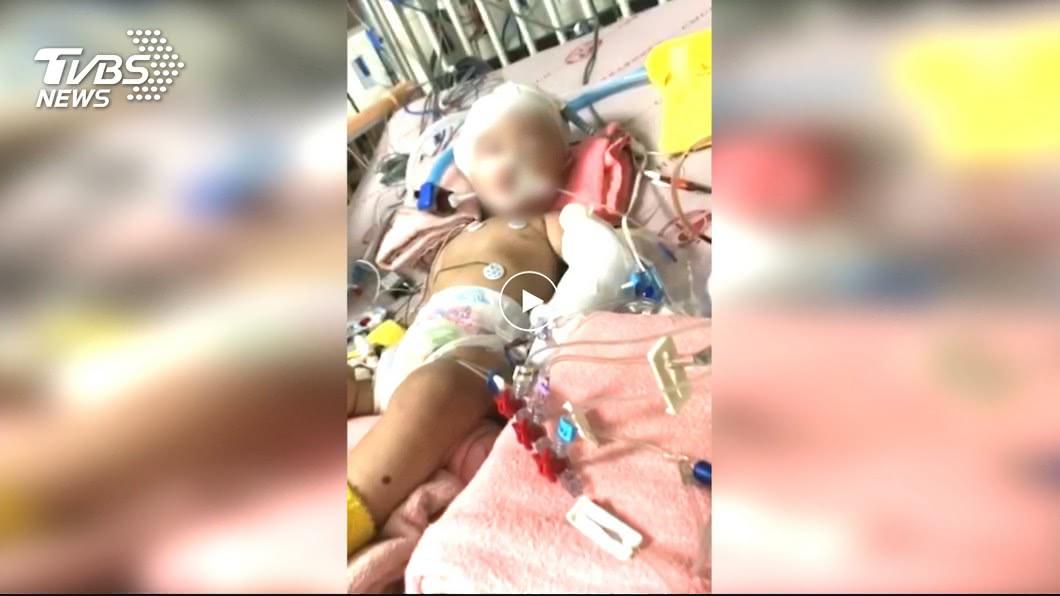 圖/TVBS資料畫面 孩遭保母重摔「癱瘓+眼盲」 母氣:無道歉只喊沒錢和解