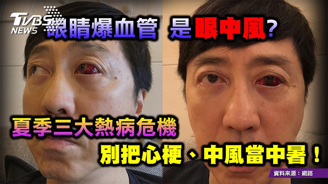 圖/TVBS提供 「中風」「中暑」分不清 掌握關鍵 避免錯過黃金搶救期