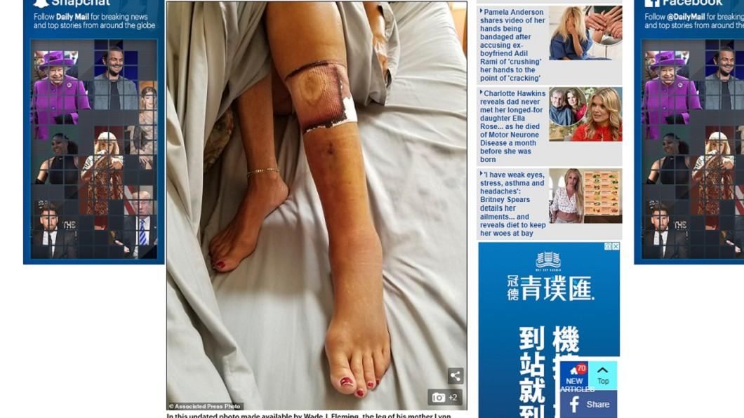 傷口雖小,感染後病菌卻擴散至全身。圖/翻攝自每日郵報