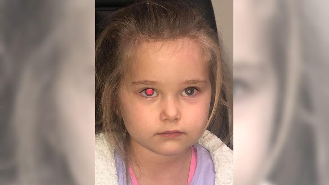 圖/翻攝當事人Melissa Hine臉書 幫4歲女兒拍照!左眼驚見詭異白點 檢查竟是癌症