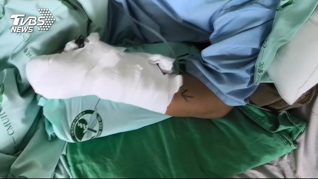 圖/TVBS 凌晨下班騎車返家 男遭尾隨砍斷手