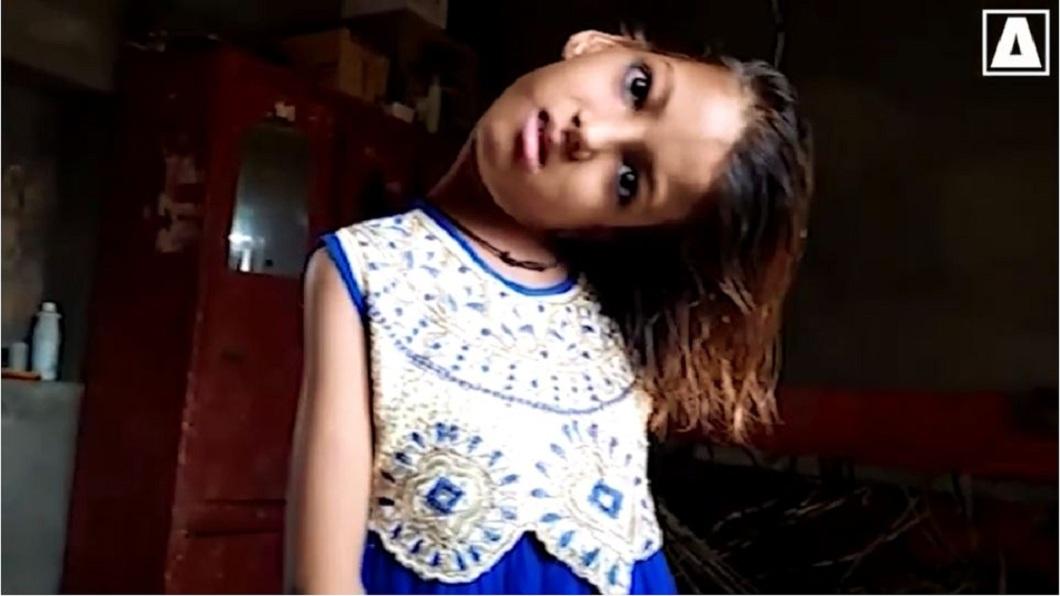 巴基斯坦一名11歲的女童,整個頸部呈現90度扭曲。(圖/翻攝自YouTube) 女童跌一跤…頸部90度扭曲持續11年 家太窮沒錢醫