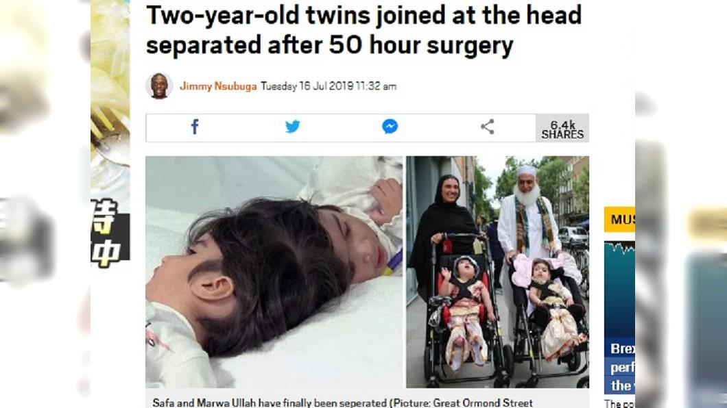 圖/翻攝自Metro 動員百醫耗費逾50小時 2歲連頭嬰姊妹花分割成功