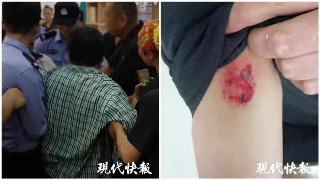 南京一名愛滋病患在法院人員執法過程中反抗,咬傷法官的手臂。(圖/翻攝自現代快報) 男咬傷法官大喊「我有愛滋」 他內心陰影憂被感染