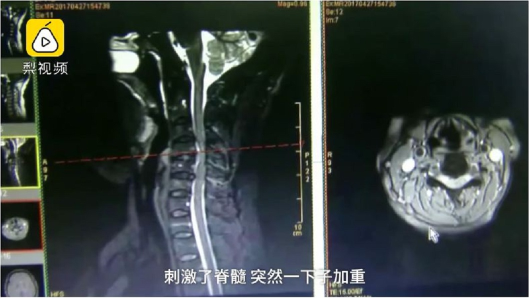 最後醫師診斷她是得了「脊髓半切綜合症」。(圖/翻攝自梨視頻) 每天打麻將超過10小時 婦玩到一半「不能動」半身癱瘓