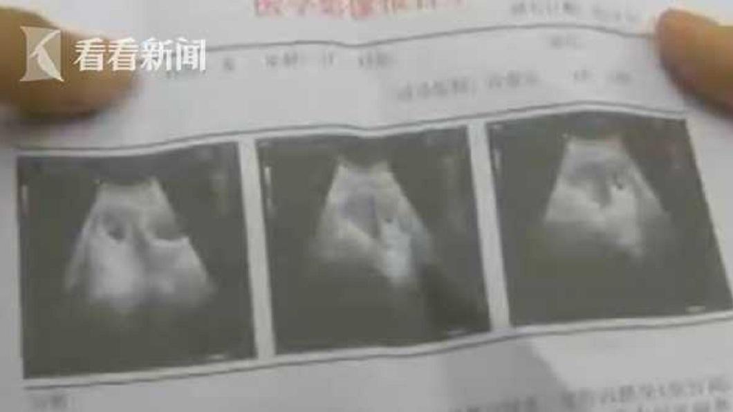 婦人在手術後1星期感到身體不適,再度前往醫院複查,沒想到胎兒竟還在腹中。(圖/翻攝自看看新聞)