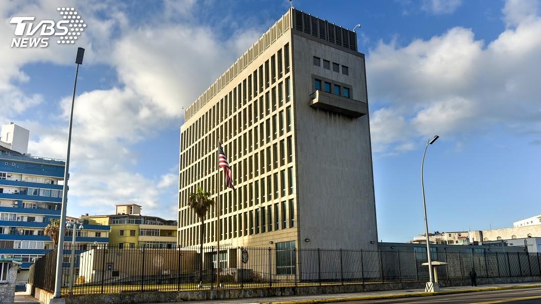 示意圖/TVBS 美駐古巴使館員工離奇患病 研究:腦部成像異常