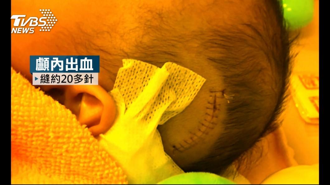 今年5月汐止區一名6月大的男嬰發生顱內出血,緊急送醫治療。(圖/TVBS) 6月男嬰每天被摔…顱內出血引癲癇 生母批保母神隱不理