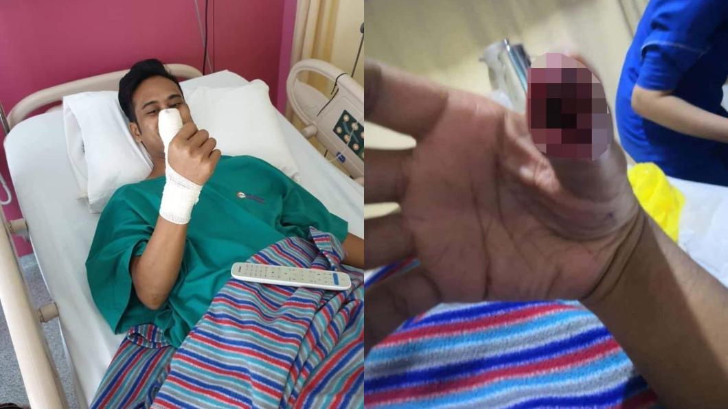 圖/翻攝自Misi Viral臉書 保護貼碎掉繼續用!他大拇指「劇痛爆膿」…下場超慘
