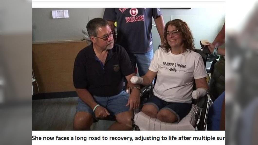 女子陷入昏迷10天,醒來後發現自己四肢被截肢了。(圖/翻攝自太陽報)