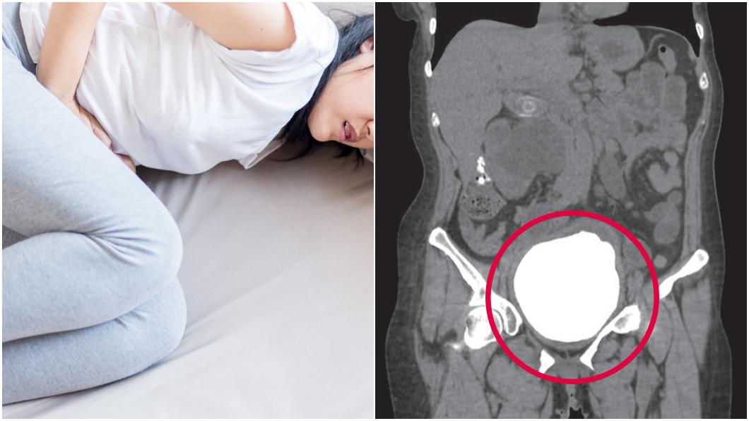 圖/左,TVBS示意圖;右,翻攝牛津醫療案報告期刊 只能躺著尿!女下腹爆痛 醫傻眼挖出「柚子大結石」