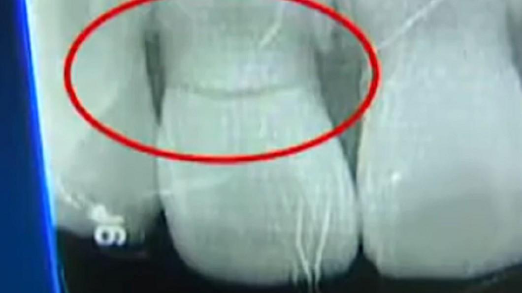 圖/翻攝自YouTube《 1818黄金眼》頻道 玩驚悚「密室逃脫」嚇壞狂奔 她撞斷牙求償:場內太暗