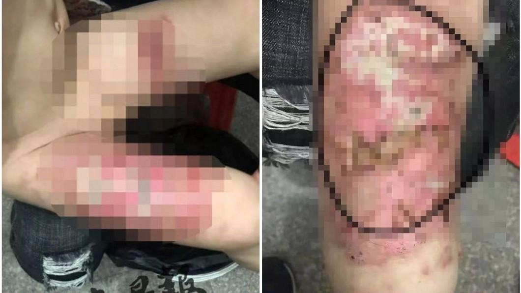 男童去年4月大腿被大面積燙傷。合成圖/翻攝東南早報、泉州熱門