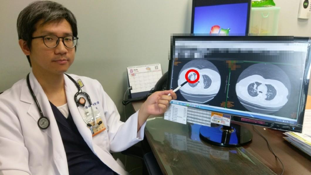 姚智偉醫師分享案例,提醒民眾身體不適要盡快就醫。圖/長安醫院提供