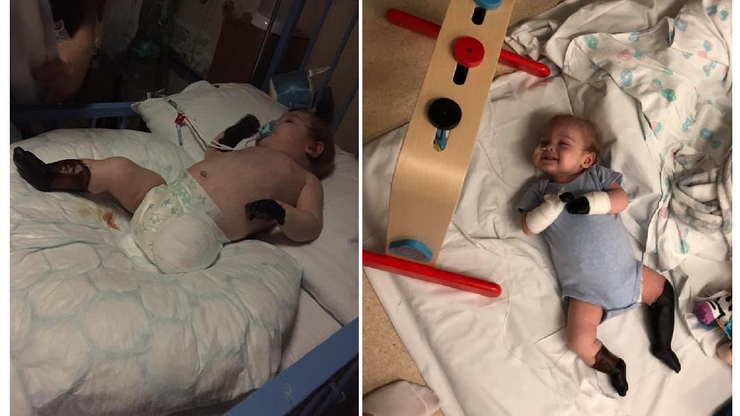英國一名男嬰感染敗血症,四肢發黑壞死,最後只好被迫截肢保命。(圖/翻攝自臉書) 11月嬰染敗血 母目睹左腿自行「脫落」