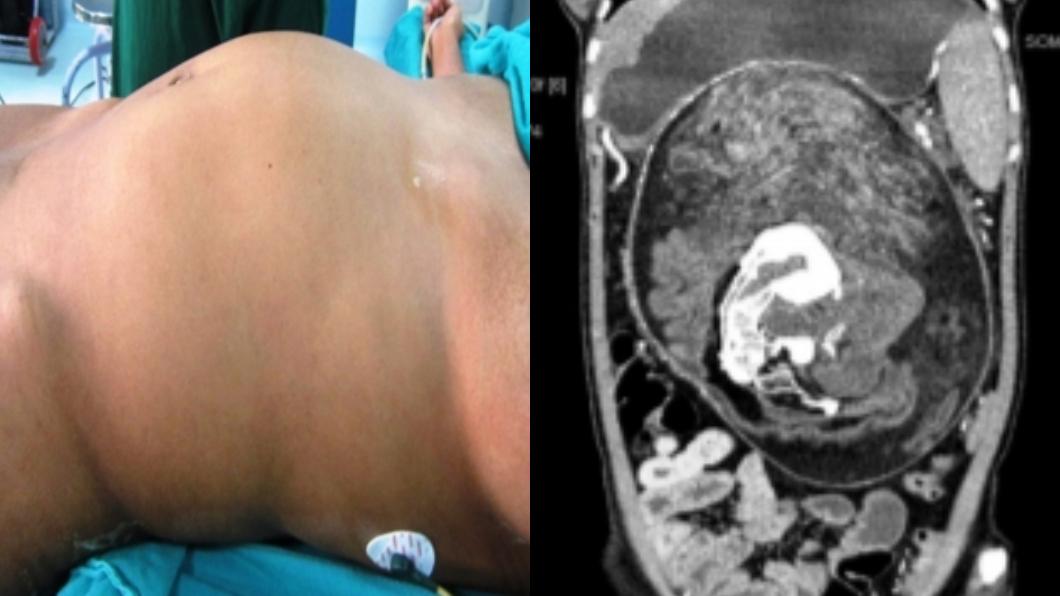圖/翻攝自英國醫學期刊(BMJ) 她腹部詭異隆起…醫剖開驚見「雙胞胎半屍」:寄生17年