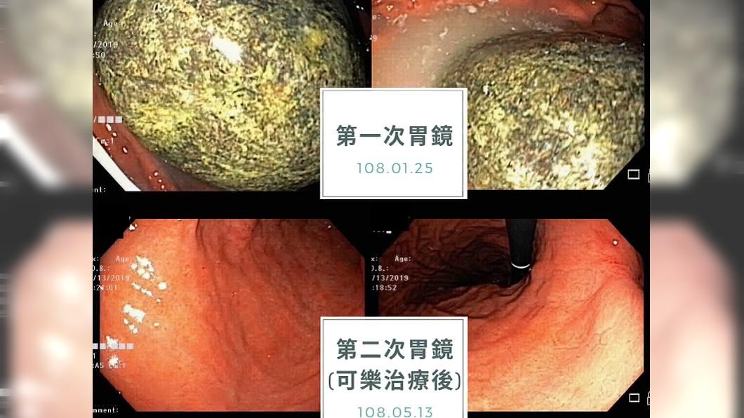 老翁喝可樂治療前後對照的胃鏡照片。圖/翻攝平安葉治威聯合診所臉書