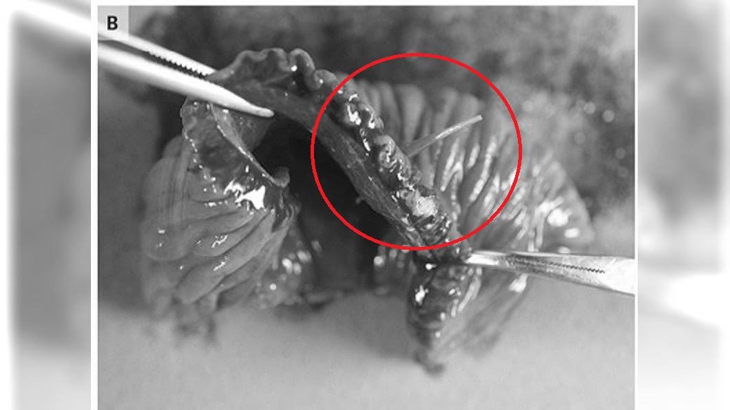 老翁的部份小腸,跟著魚刺一起被切除。圖/翻攝The New England Journal of Medicine
