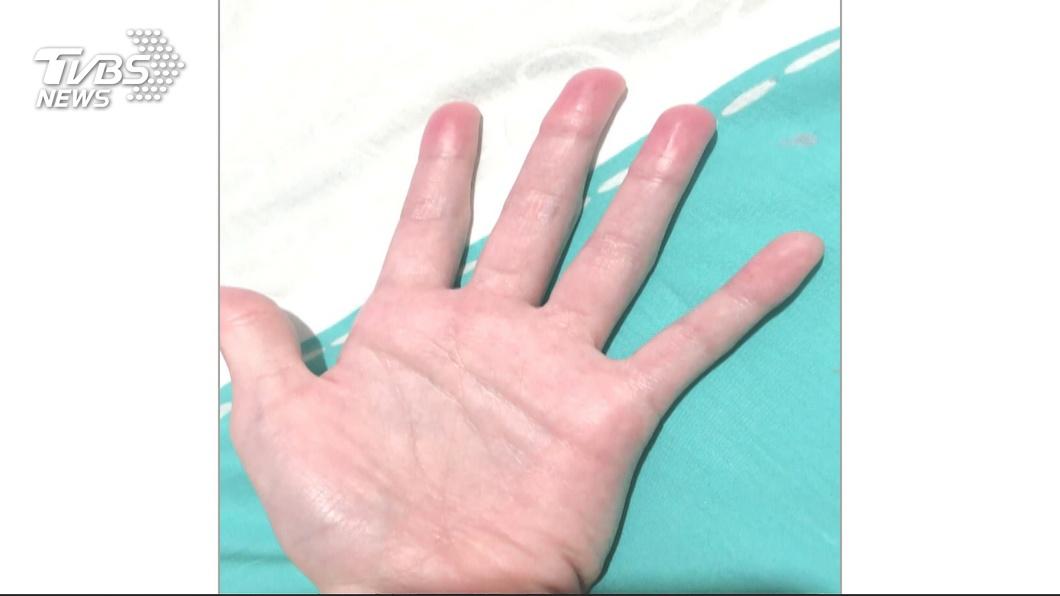 圖/TVBS 數小時玩「史萊姆」 國小童「手指腫、指紋不見」