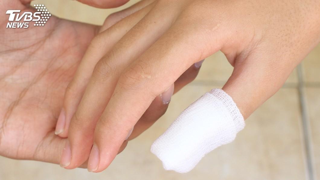 示意圖,與本事件人物無關。圖/TVBS 不慎剁斷大拇指!天兵女竟丟滾水想「消毒」 醫傻眼