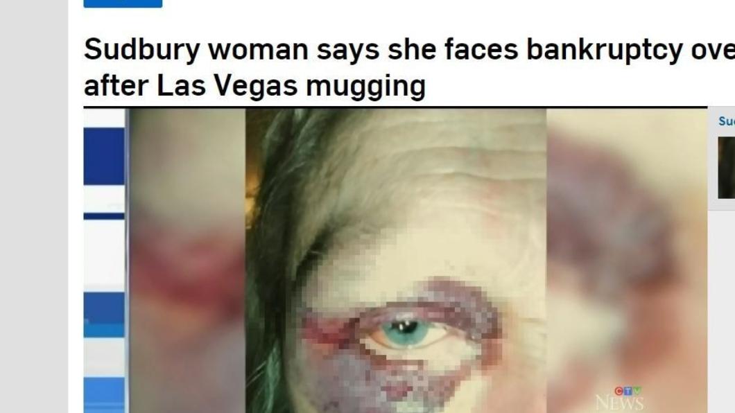 翻攝/ctvnews 遊玩遇劫被毆!她去趟醫院 回國竟因醫藥費秒破產