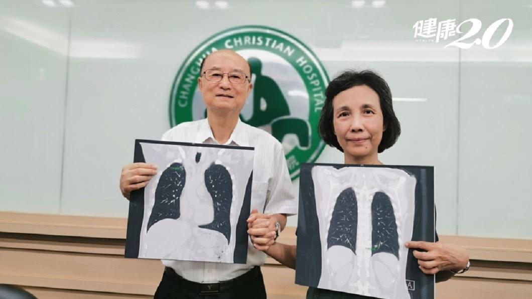 67歲牧師王武聰與64歲老婆陳希明先後被診斷出罹肺腺癌。圖/彰化基督醫院提供