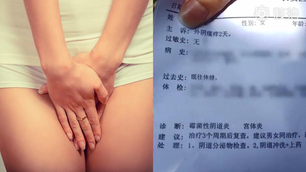 左圖/TVBS示意圖。右圖/翻攝自梨視頻 超商買日本套套 用後癢炸:買到假貨!