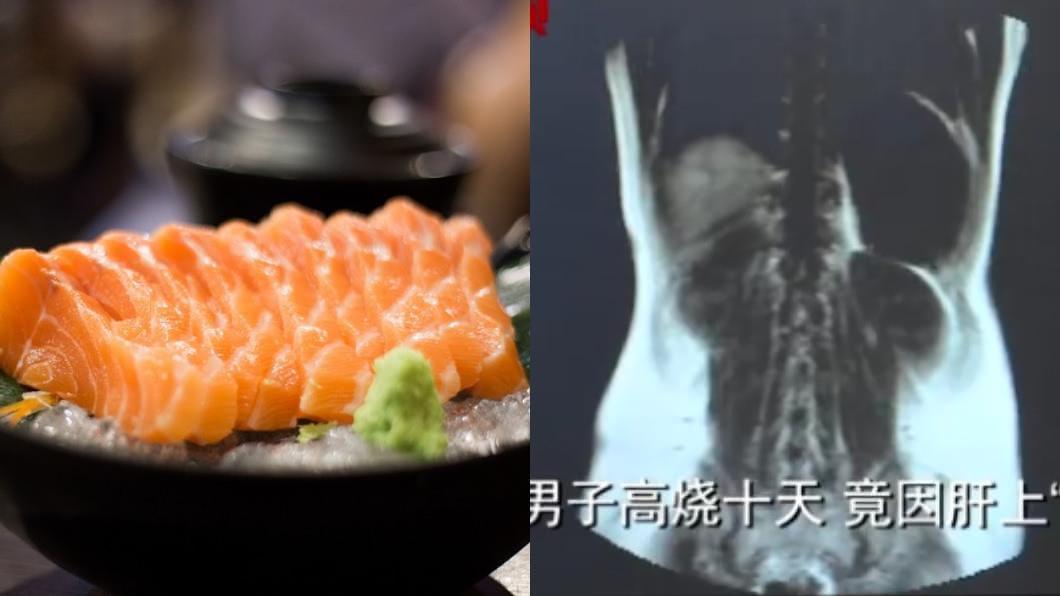 左圖/TVBS示意圖。右圖/翻攝自微博 男吃生魚片3年 照X光驚見「密麻活蟲」狂啃咬肝臟