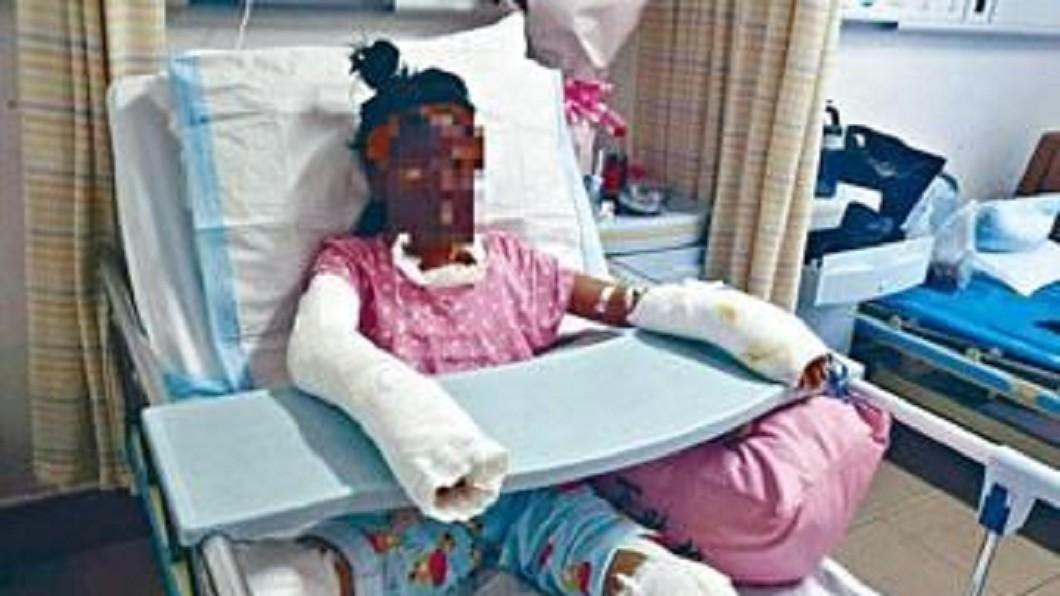少女在家自製爆米花,但操作不慎遭燒傷。 圖/翻攝自微博 少女看片DIY爆米花燙傷身亡 網紅遭批:殺人兇手