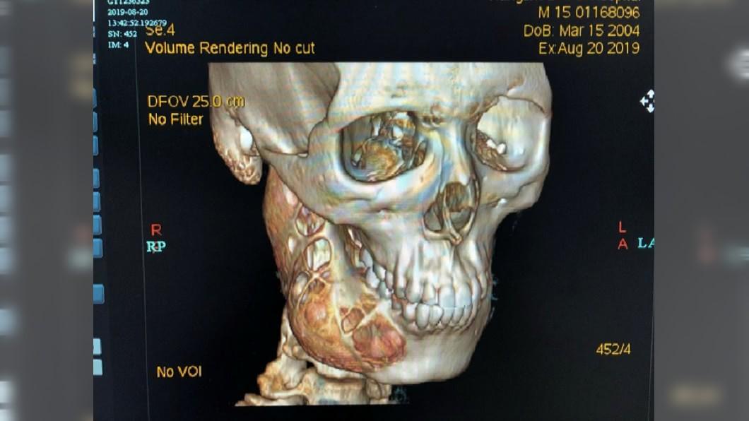 圖/翻攝自齊魯晚報 牙痛忍1年!15歲少年下顎被「吃掉一半」 醫嚇傻