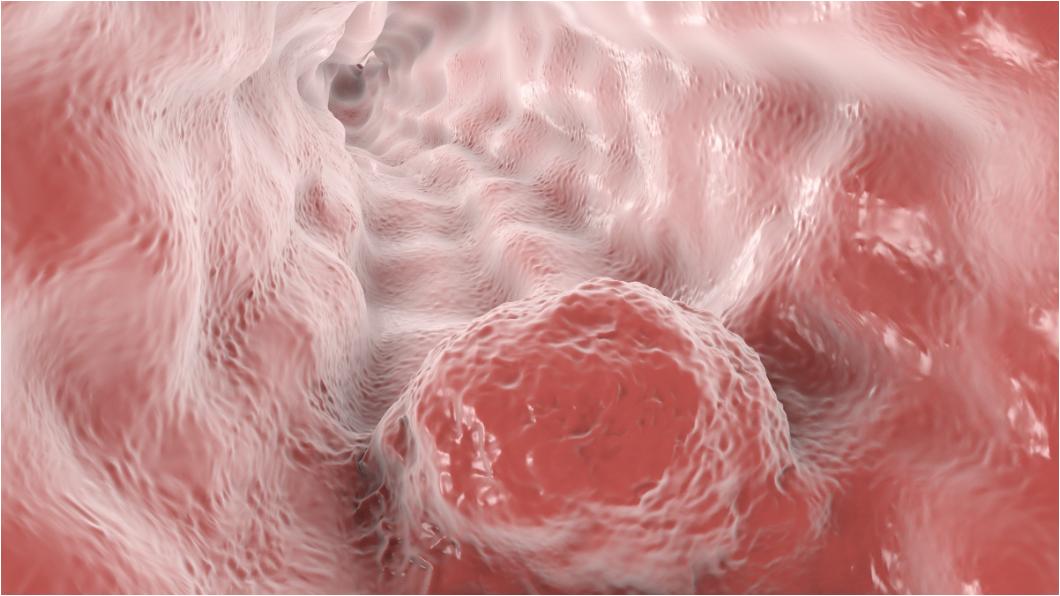 示意圖/TVBS 女照胃鏡意外發現「食道癌」 醫曝:3種習慣成危險因子
