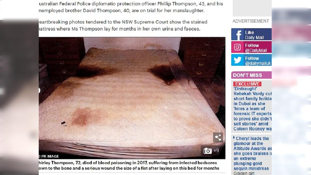 圖/翻攝自每日郵報 年邁母躺屎尿床墊「褥瘡爛見骨」 兒:她不愛看醫生