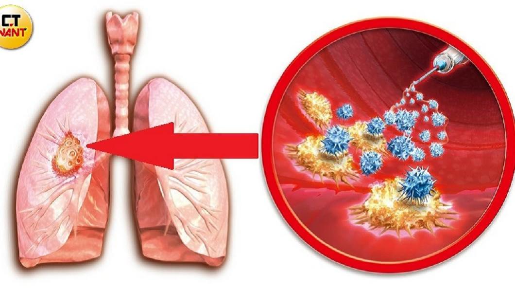 肺癌死亡率連續蟬連10年冠軍,是最致命的癌症。圖/CTWANT授權使用 這個癌最致命!確診多已癌末 死亡率連續10年奪冠