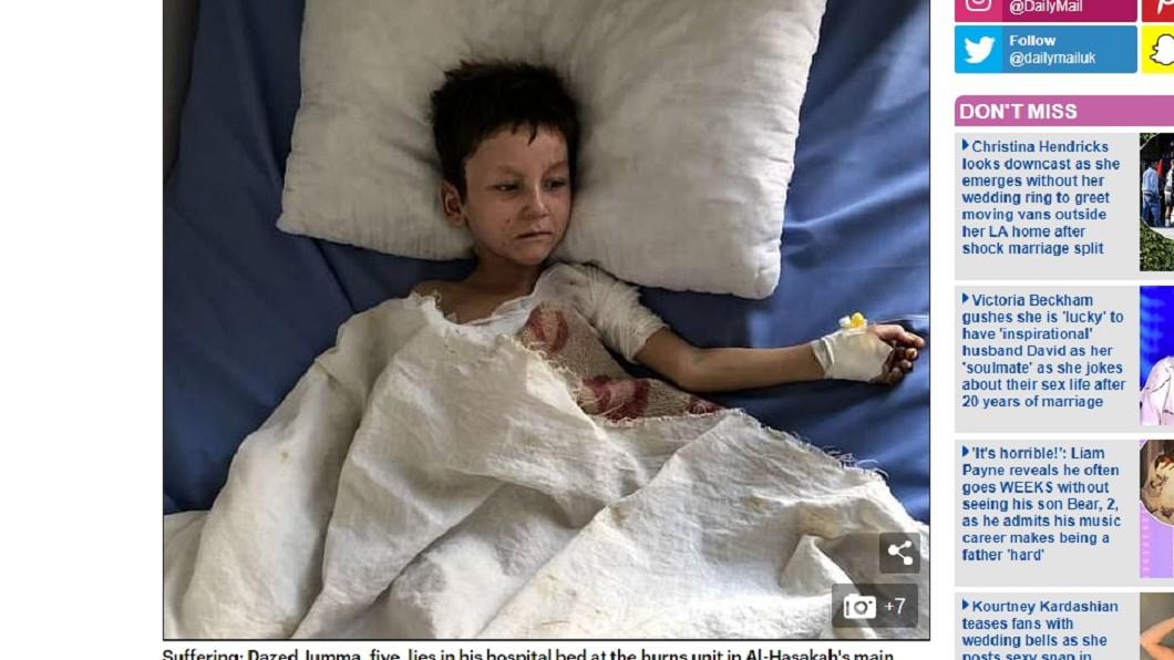 僅5歲的朱瑪(圖/翻攝自Daily Mail) 土耳其化武攻擊 5歲童全身皮膚燒傷如剝落外牆