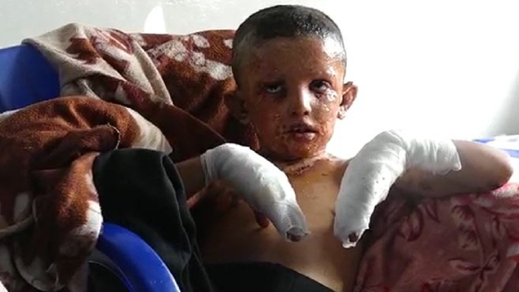 圖/翻攝自ANMA 土耳其疑用化武白磷攻擊 男孩皮膚剝落哭喊