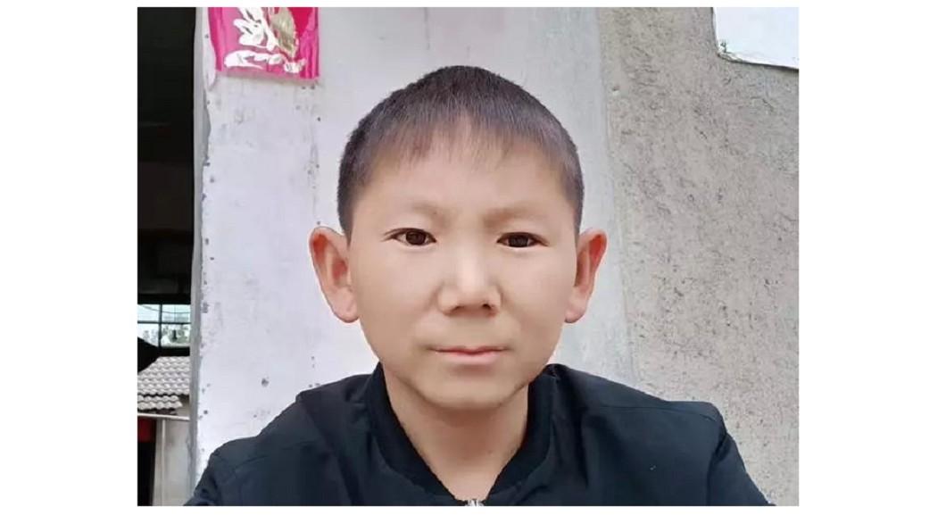 圖/翻攝自 海上居士 微博 6歲遭石塊爆頭!男終身童顏 嘆無法成家
