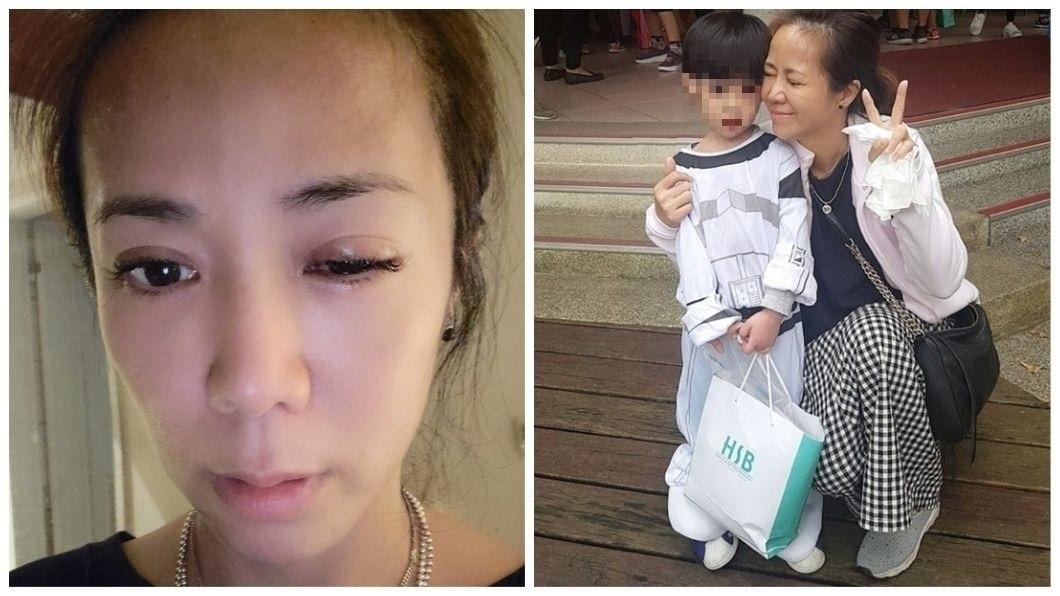 女星陳仙梅日前分享自己的腫眼照,提到被大兒子手指插進眼球受傷。(圖/翻攝自陳仙梅臉書) 被兒小手插破眼球 女星po腫眼照嘆:媽媽真辛苦