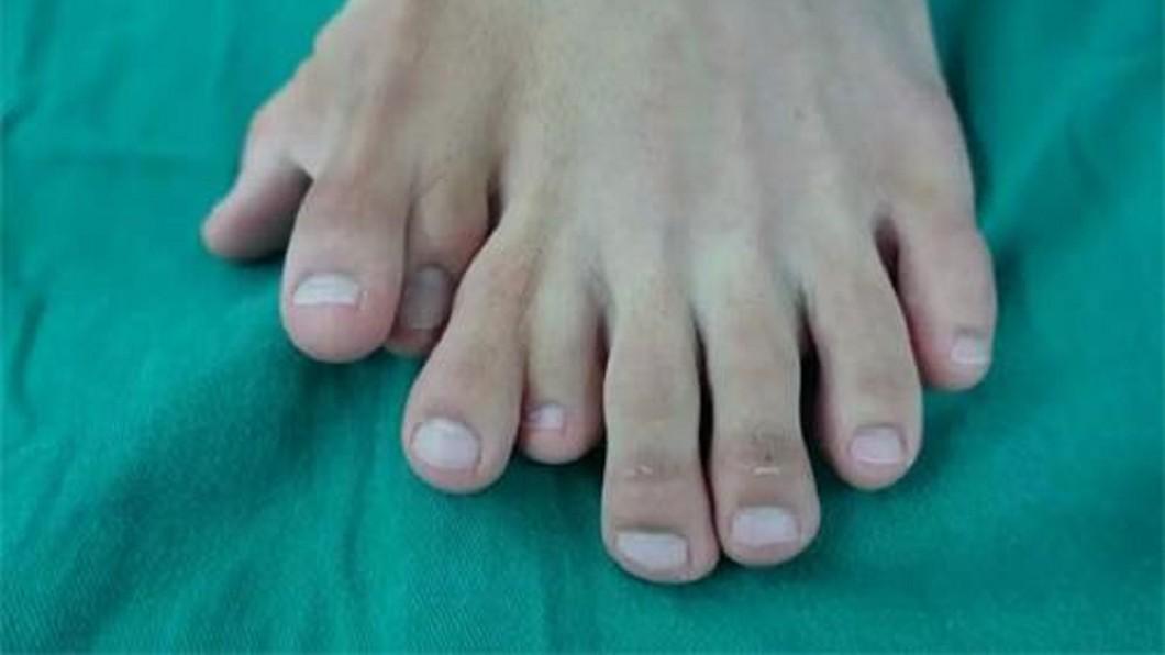 小帆患有「多指畸形」。圖/翻攝自廣州日報 清秀男「一腳長9隻腳趾」…忍受多年沒就醫全因1句話