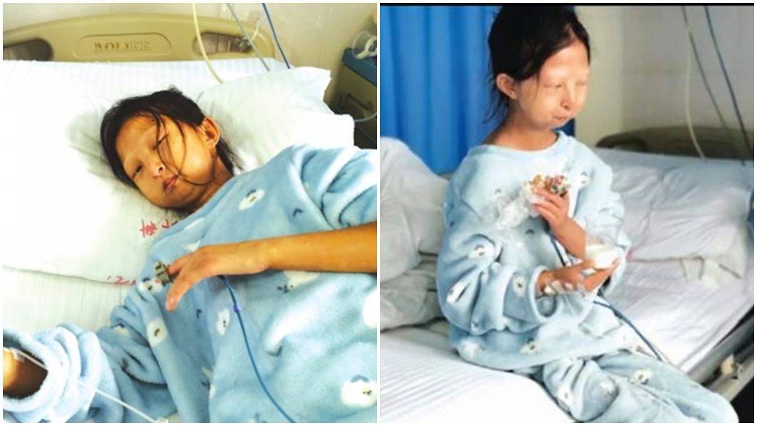 圖/翻攝自貴州都市報網站、搜狐視頻 為救病弟日花10元吃飯 她瘦到剩21公斤心臟出問題
