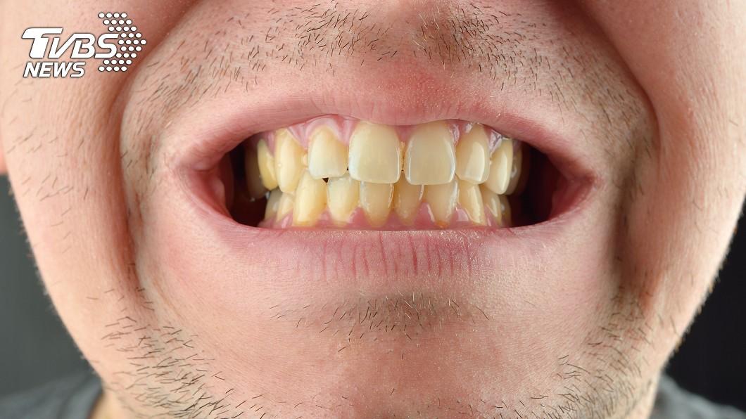 示意圖/TVBS 牙齒變黃1年查無原因 醫一看嚇傻:是胃癌!