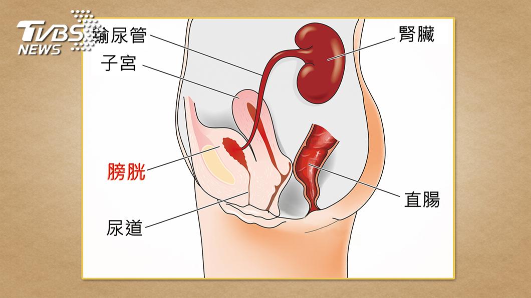 圖/TVBS提供 夜尿不全是膀胱的錯 小心跟這些疾病有關
