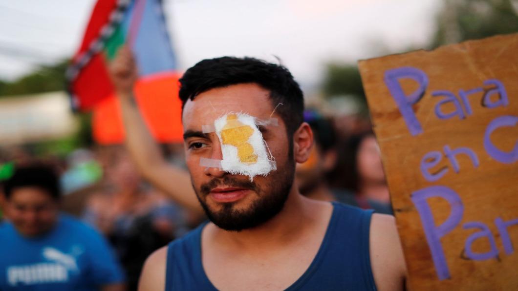 圖/達志影像路透 智利警察鎮暴「瞄準眼睛」! 180人遭打瞎