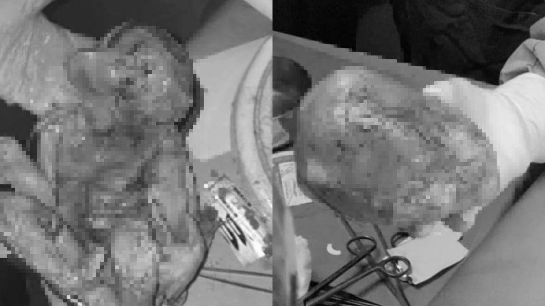 翻攝/推特 醫護也驚訝!6旬婦肚痛 驚見「石化嬰屍」藏體內15年