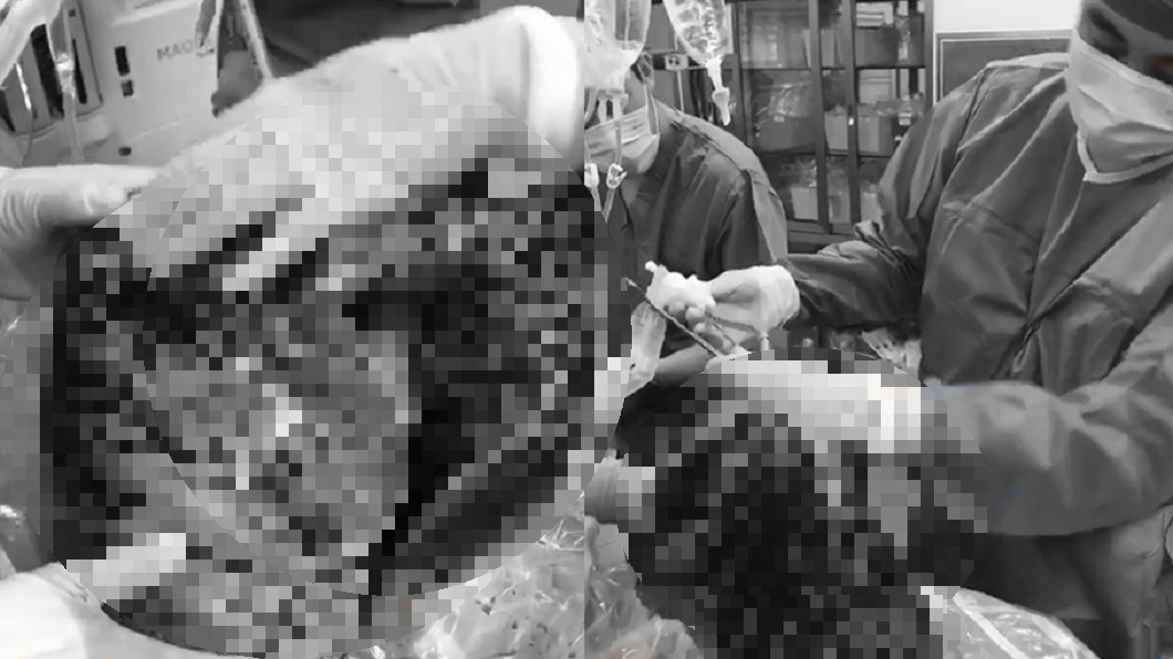 圖/翻攝自微博 抽菸30年死後器捐 醫見「恐怖黑肺」搖頭:沒人要