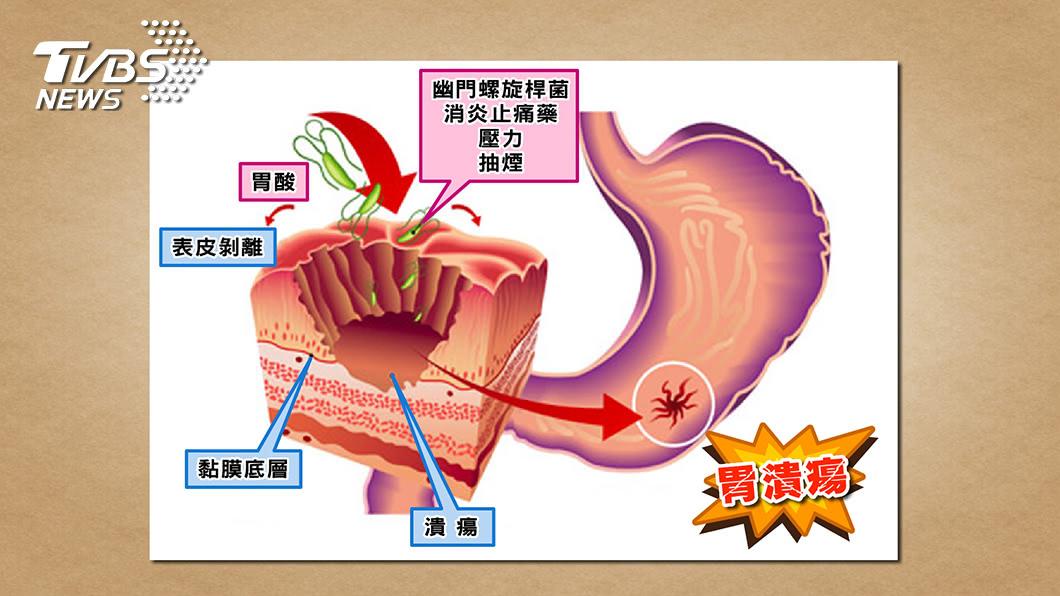 圖/TVBS 天氣變冷溫差大 胃脹又悶痛? 小心是胃潰瘍發作