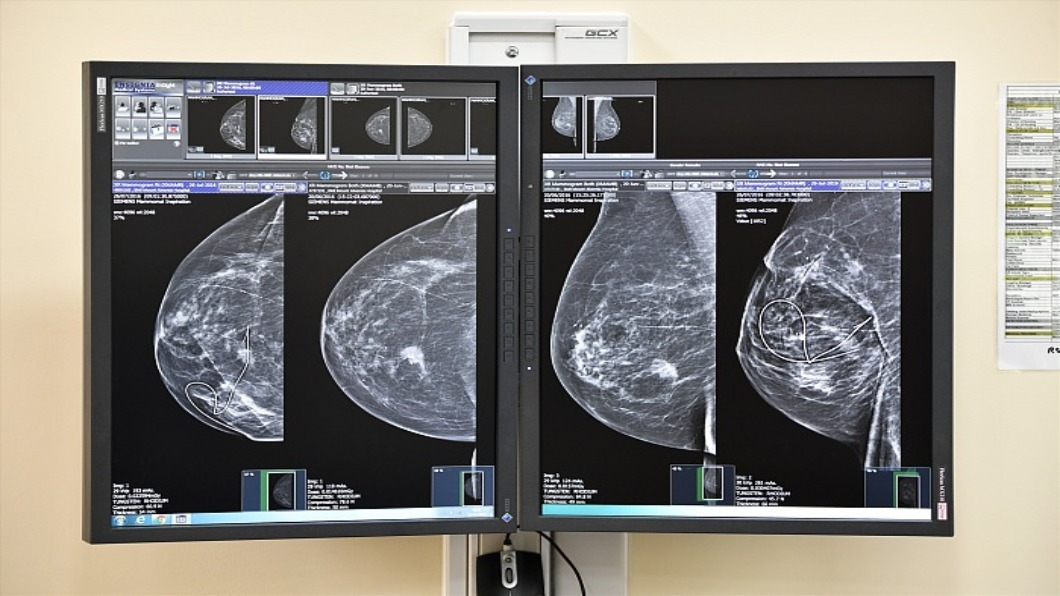 圖/達志影像 美國谷歌AI研發 判讀檢測乳癌.減誤判