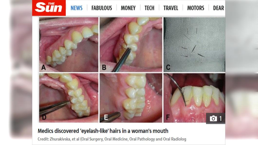 (圖/翻攝自太陽報) 荷爾蒙失調!她牙齦激長「深褐色睫毛」 醫:是罕病